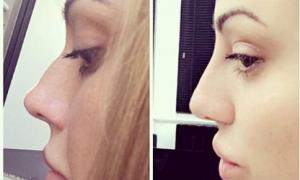 Has Holly Hagan Geordie Shore Had A Nose Job Pictures