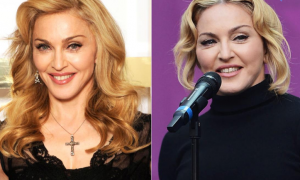 Madonna plastic surgery before and after face photos