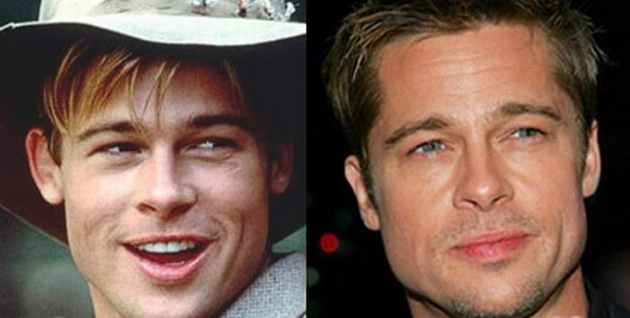 Brad Pitt Plastic Surgery Before And After Nose Job