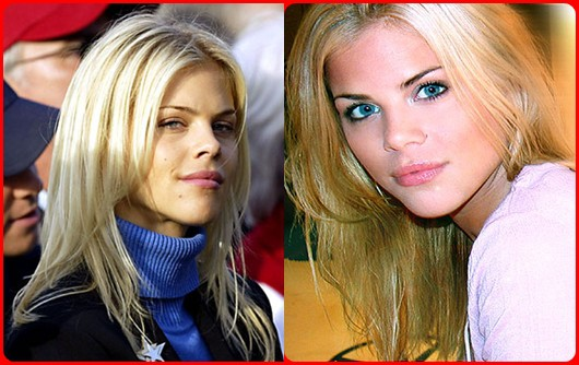 Elin Nordegren Cosmetics Surgery Before and After Photos
