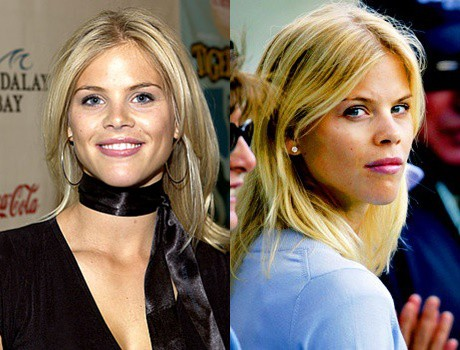Elin Nordegren Lip Fillers Before and After Photos