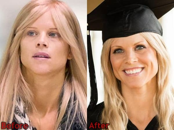 Elin Nordegren Nose Job Plastic Surgery before and After Photos