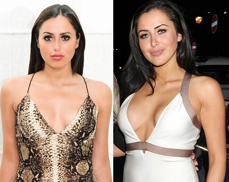 Geordie Shore Marnie Simpson Plastic Surgery Before And After Photos
