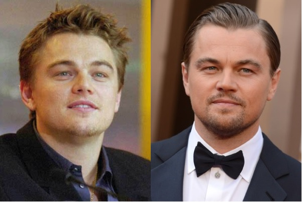 Leonardo DiCaprio Plastic Surgery Before And After Nose Job Rumors