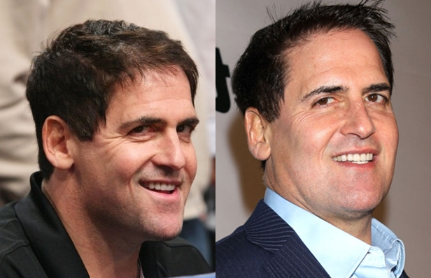 Mark Cuban Nose Job Plastic Surgery Before And After Photos