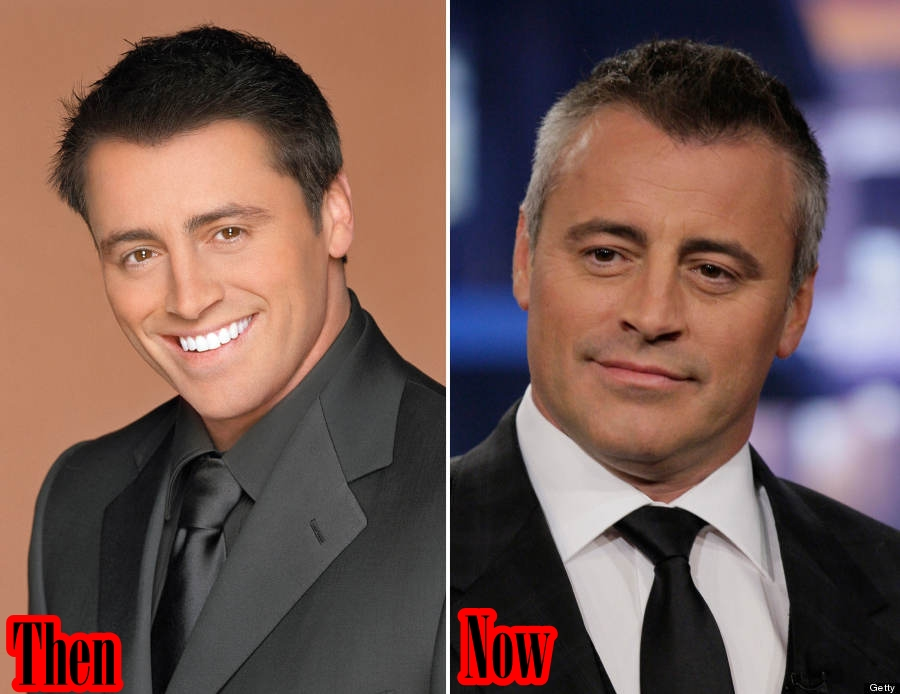 Matt LeBlanc Plastic Surgery Before And After Cosmetics Rumors