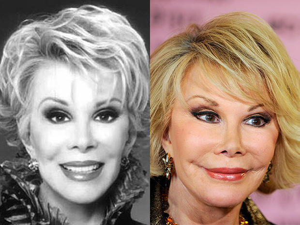 celebrity facelifts gone bad before and after pictures Joan Rivers