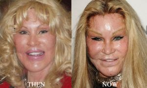 celebrity facelifts gone bad before and after pictures Jocelyn Wildenstein