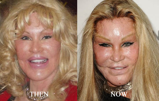 Celebrity Facelifts Gone Bad Before And After Pictures ...