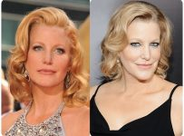 Anna Gunn Plastic Surgery Before And After Botox, Facelift Photos