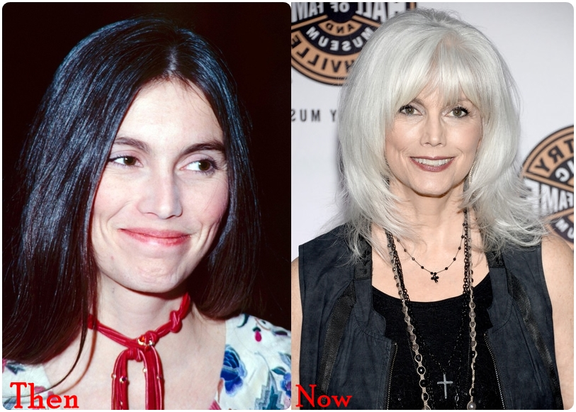 Emmylou Harris Plastic Surgery Before And After Botox ... Emmylou Harris In Nederland In 2018