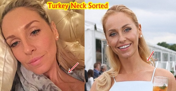 Josie Gibson Plastic Surgery Before And After Cosmetics Turkey Neck Photos