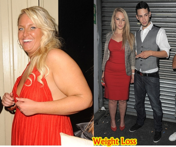 Josie Gibson Plastic Surgery Before And After Weight Loss Photos