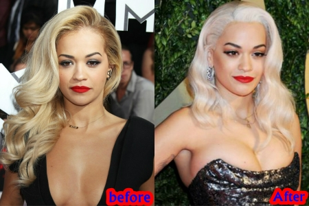 Rita Ora breasts implants plastic surgery rumors before and after photos