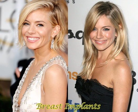 Sienna Miller Breasts Implants Plastic Surgery Before And After Photos