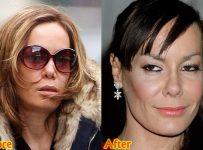 Tara Palmer Tomkinson Plastic Surgery Before And After Nose Job Photos