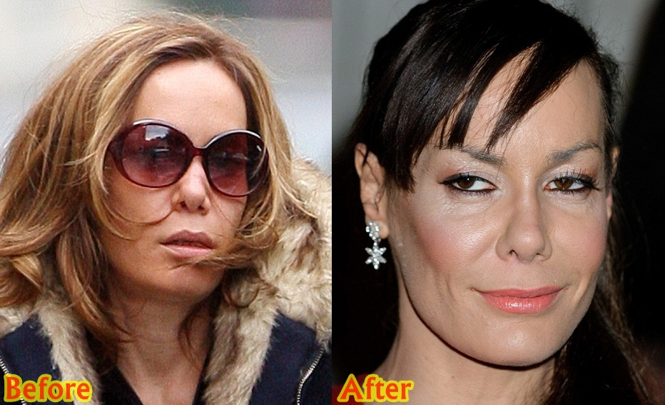 Tara Palmer Tomkinson Plastic Surgery Before And After Nose Job Photos