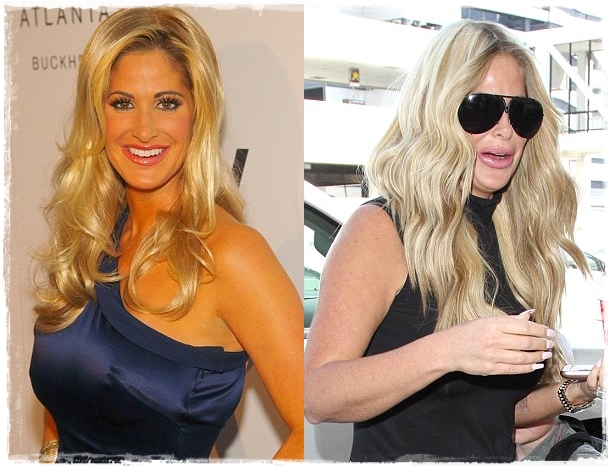 kim zolciak lip fillers plastic surgery snapchat before and after photos