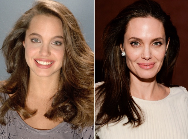 Angelina Jolie Nose Job Plastic Surgery Before And After Photos