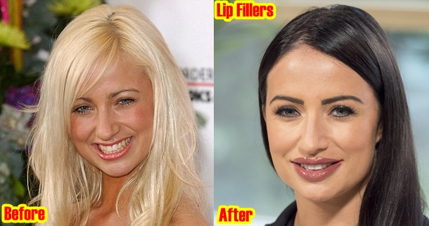 Chantelle Houghton Lip Fillers Plastic Surgery Before And After Photos