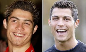 Cristiano Ronaldo Teeth Plastic Surgery Before And After Photos