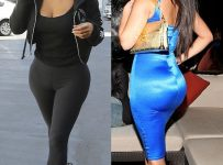 Does Kim Kardashian Have Bum Implants Or Fake