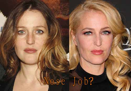 Gillian Anderson Nose Job Plastic Surgery Before And After Photos