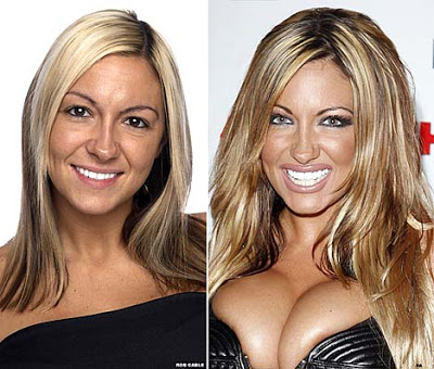 Jodie Marsh Plastic Surgery Before And After Photo