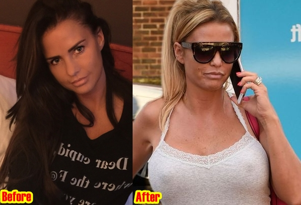 Katie Price Breasts Implants Plastic Surgery Before And After Photos