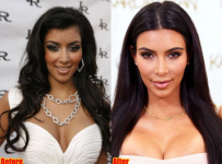 Kim Kardashian Cosmetic Surgery Before And After Photos