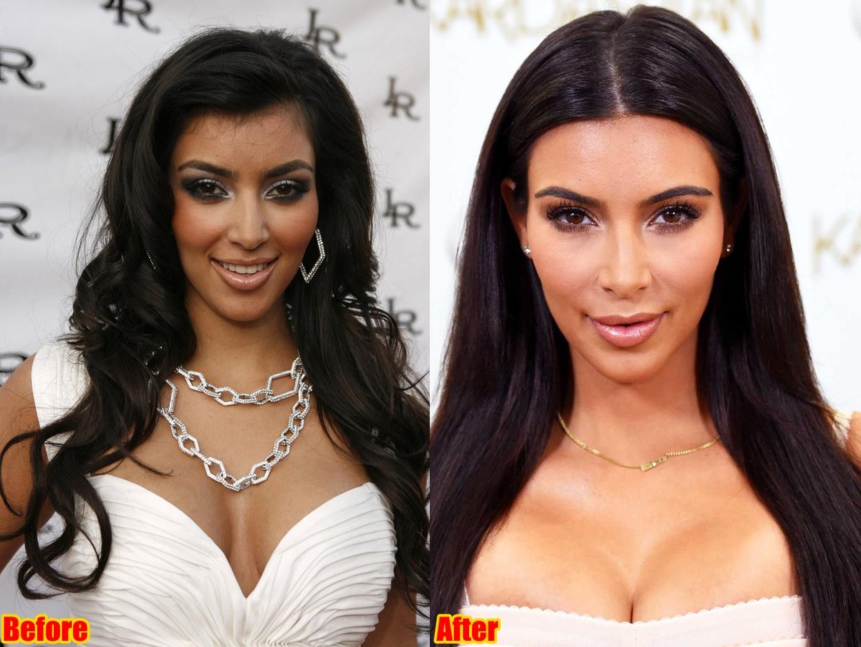 Kim Kardashian Face Surgery Before And After Photos