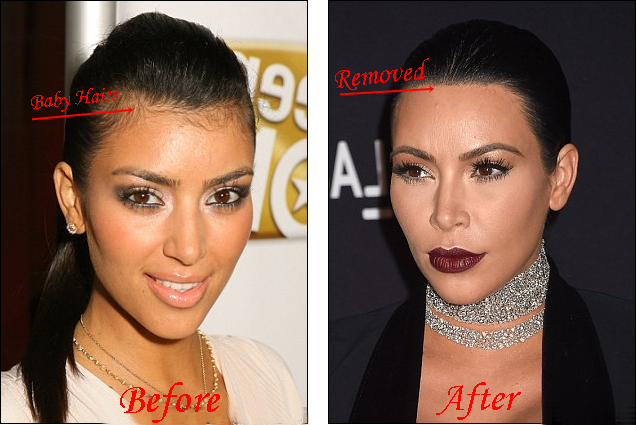 Kim Kardashian laser hair removal before and after Pictures
