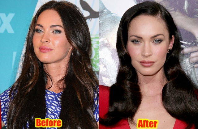 Megan Fox Lips Filler Injection Before And After Pictures