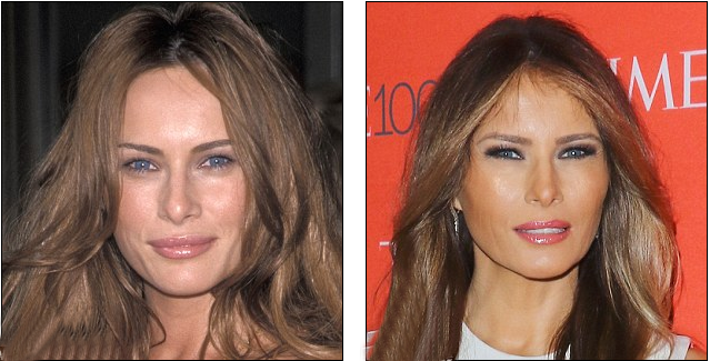 Melania Trump Plastic Surgery Cheek Implants Photo