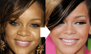 Rihanna Forehead Reduce Size Surgery Before And After Photos