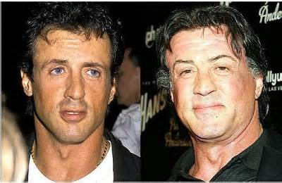 Sylvester Stallone Hair Transplant Before And After Pictures
