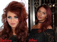 amy-childs-cosmetics-plastic-surgery-before-and-after-lip-fillers-photos