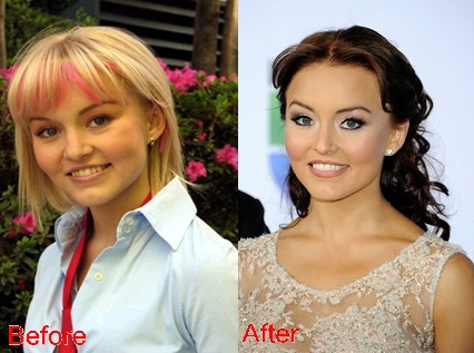 Angelique Boyer nose job plastic surgery before and after photos