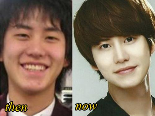 Cho Kyuhyun Plastic Surgery Before And After Eyelid, Nose Job Photos