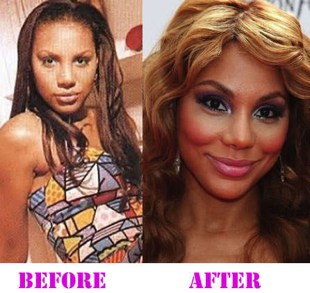 Did Tamar Braxton Has Had Plastic Surgery Before And After Photos