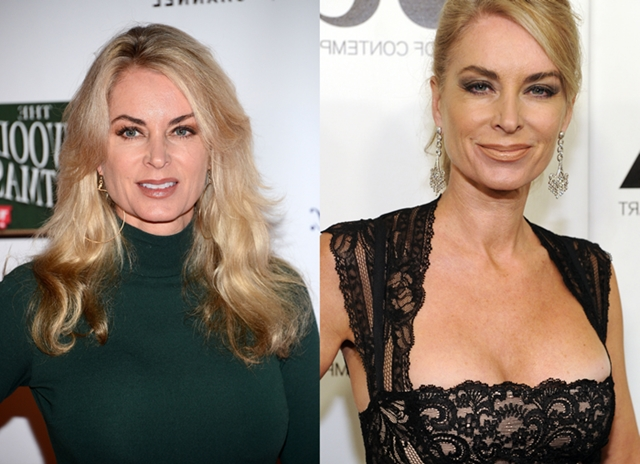 Eileen Davidson Plastic Surgery Rumors Before And After Botox Pics
