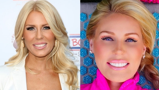 Gretchen Rossi Plastic Surgery Face Before And After Laser Treatment