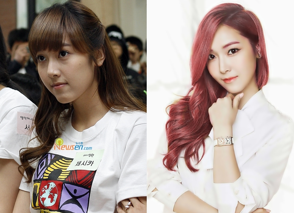Jessica Jung Plastic Surgery Before And After Photos