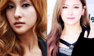 Kara Gyuri Plastic Surgery Before And After Photos