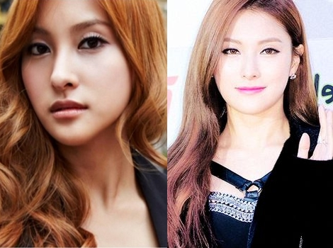 Kara Gyuri Plastic Surgery Before And After Photos