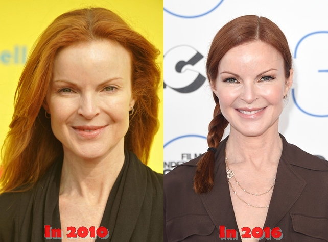 Marcia Cross Plastic Surgery Before And After Cosmetics Photos
