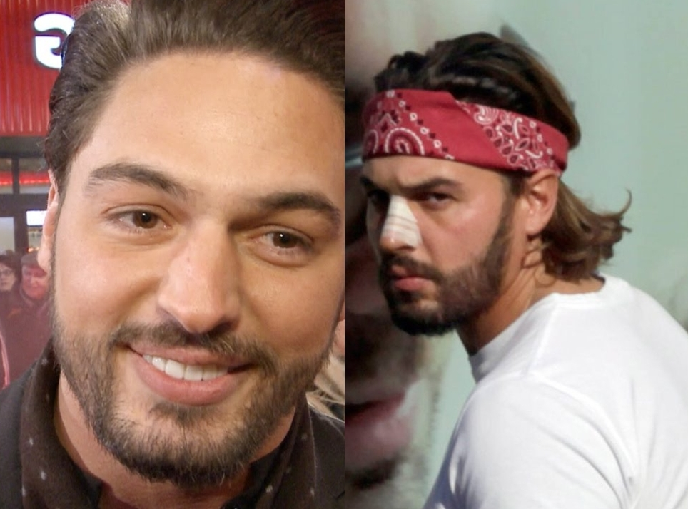 Mario Falcone Nose Job Plastic Surgery Before And After Photos