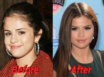 Selena Gomez nose job before and after rhinoplasty photos