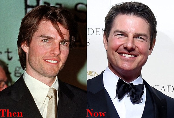 Tom Cruise Cosmetics Plastic Surgery Before And After Face Photos