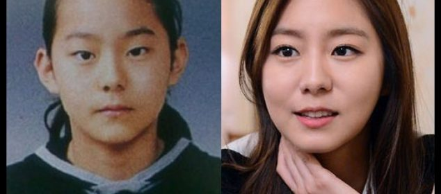 Uee Plastic Surgery Before And After Eyelid, Cosmetics Photos